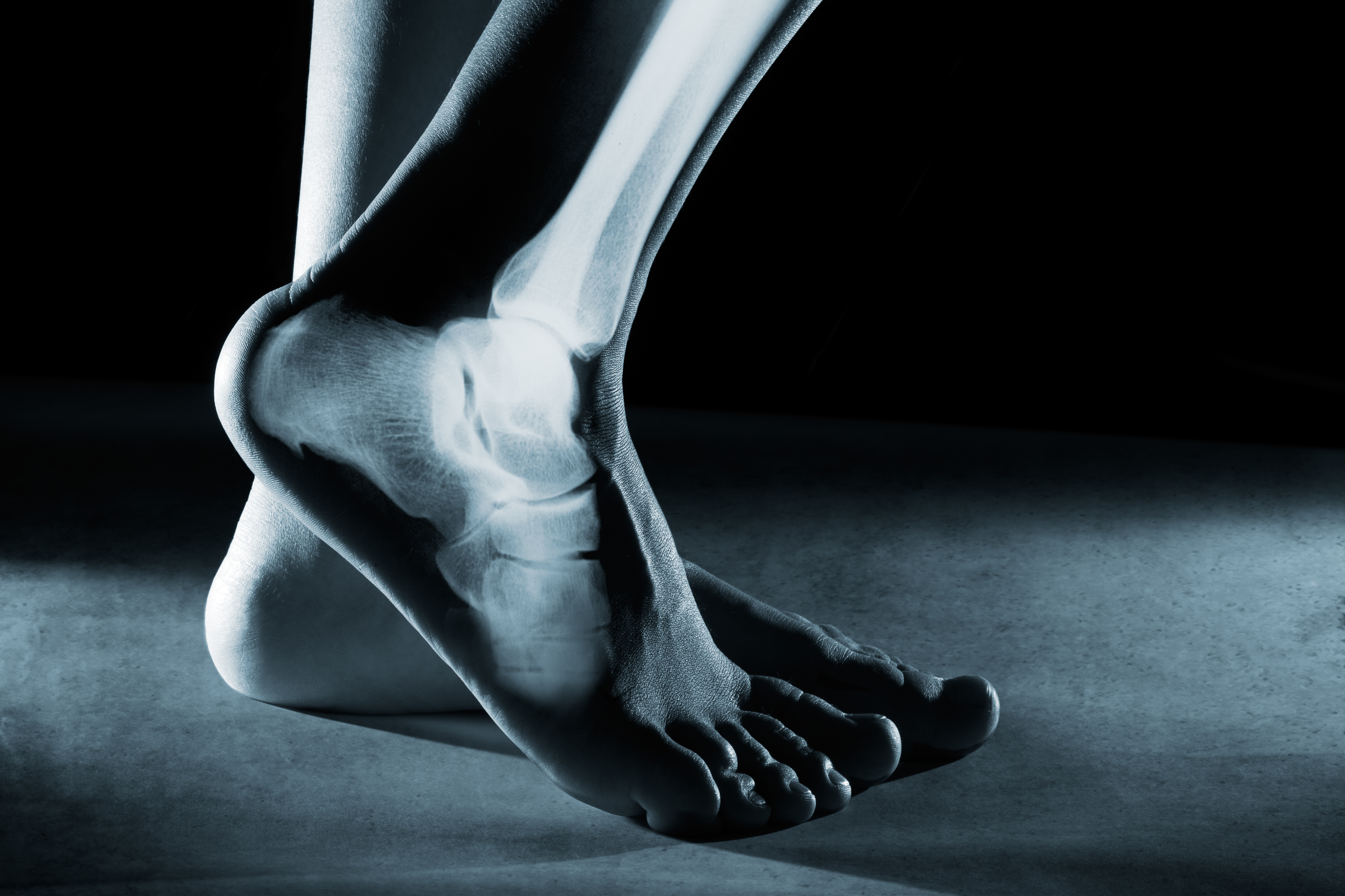Human foot ankle and leg in x-ray, on gray background